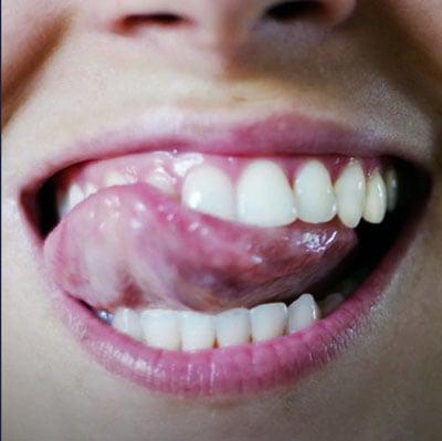 Siento diferente textura en los dientes